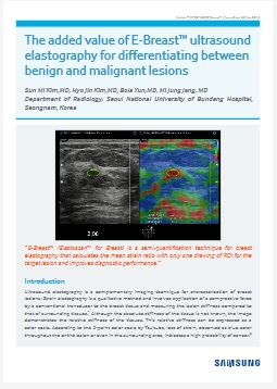 The added value of E-Breast™ ultrasound elastography for differentiating between benign and malignant lesions